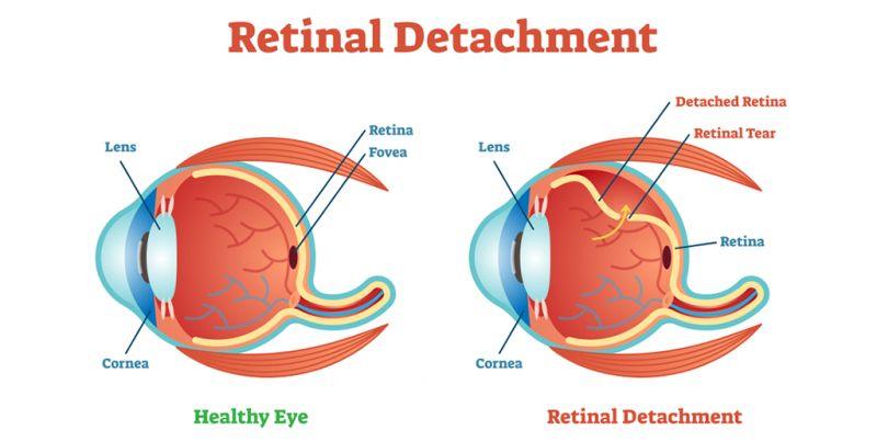 retina brasilia df